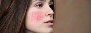 acné y rosácea