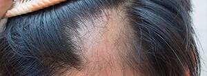 alopecia y cabello