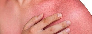 alergias dermatológicas