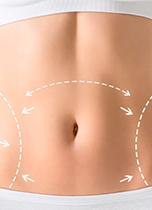 liposucción de abdomen