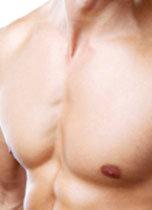 Liposucción de pecho hombres